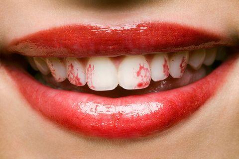 lipstick-on-teeth-