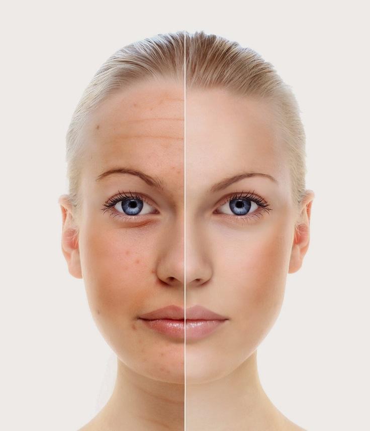 Castor oil facial