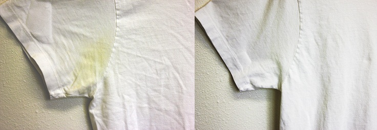 Remove-Underarm-Stains