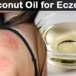 Coconut-Oil-for-Eczema