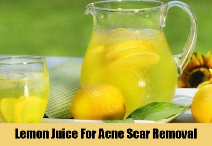 Lemon-Juice-For-Acne-Scar-Removal