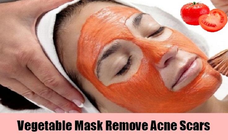 anti-scar-mask