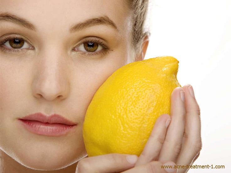 lemon-juice-for-acne-treatment