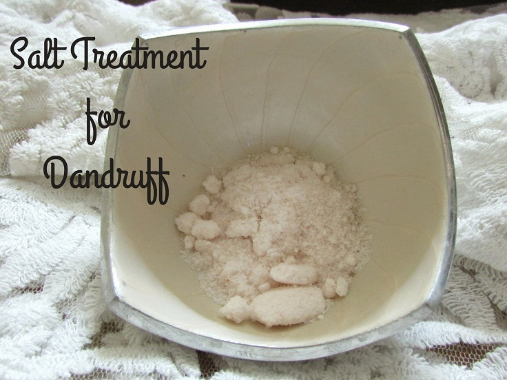 Top 10 Homemade Dandruff Treatments and Shampoos