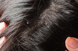 Top 10 Homemade Dandruff Treatments and Shampoos | Top Inspired