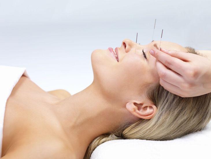 topAcupuncture