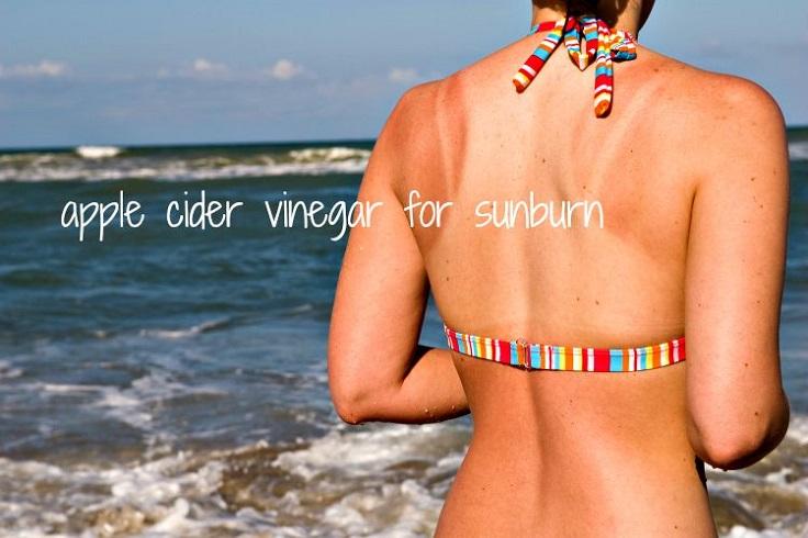 Sunburn-Remedy